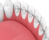 التقويم الثابت خلف الأسنان