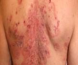 مرض الفقاعات الجلدية