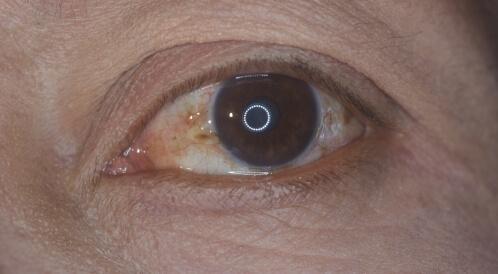 اللطخة الصفراء في العين