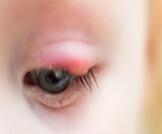 علاج انتفاخ جفن العين العلوي عند الأطفال