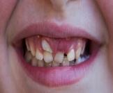 ظهور الاسنان الدائمة قبل سقوط اللبنية