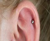 تورم الأذن بعد التخريم