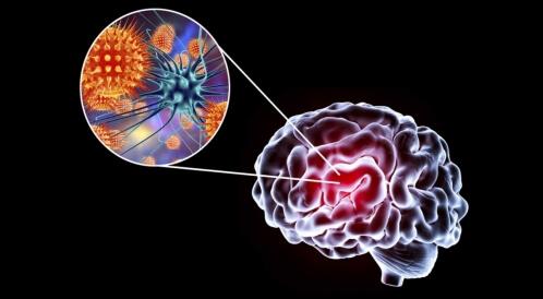 هل التهاب الدماغ خطير