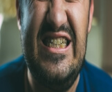 تصبغات الأسنان السوداء