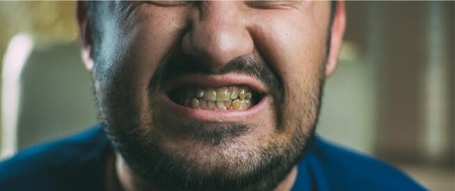 تصبغات الأسنان السوداء: أسباب عديدة
