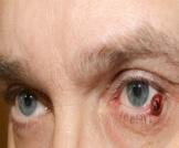 سرطان جفن العين: معلومات هامة