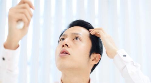 هرمون DHT وتساقط الشعر