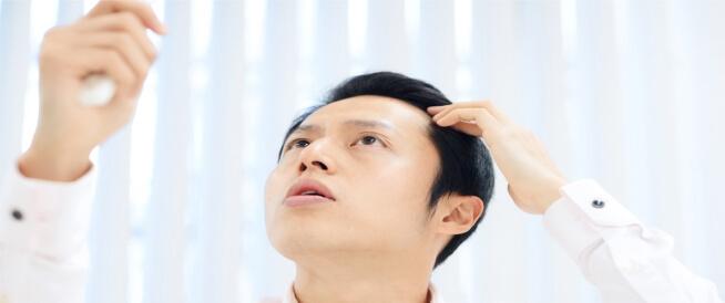 هرمون DHT وتساقط الشعر: ما العلاقة بينهما؟