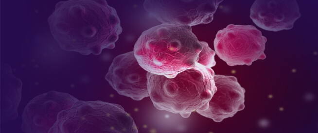 علاج سرطان الثدي الهرموني