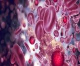 مراحل سرطان الدم وأنواعه