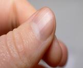 أعراض نقص الحديد والكالسيوم