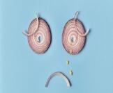 حساسية البصل