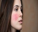 علاج آثار الكورتيزون على الوجه