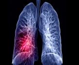 مضاعفات جلطة الرئتين وأبرز أعراضها