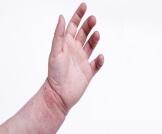 تشققات الجلد عند الأطفال