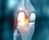 التهاب المفاصل الرثياني