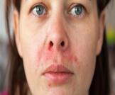 التهاب الجلد حول الفم