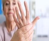 أعراض التهاب المفاصل عند النساء