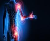 أعراض التهاب المفاصل والعضلات