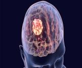 أعراض سرطان الدماغ في مراحله الأولى