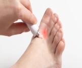 علاج فطريات الجلد