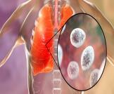 التهاب الرئة الفطري