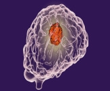 علاج أورام المخ بدون جراحة