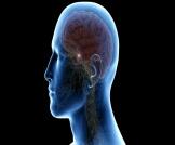 أعراض أورام الغدة النخامية