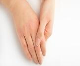 علاج جفاف الجلد لمرضى السكر