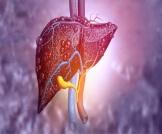 المرحلة الرابعة من سرطان الكبد