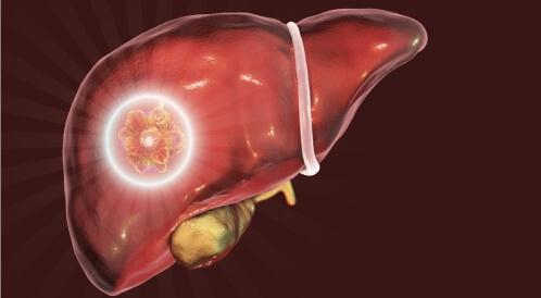 أعراض أورام الكبد الحميدة