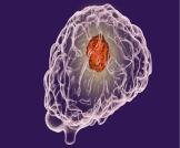 علاج ورم الدماغ الحميد