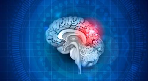 أمراض الدماغ الخطيرة