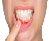 التهاب اللثة الفطري