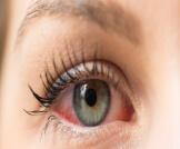 أعراض جفاف العين الشديد