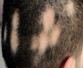 الفرق بين الثعلبة وفراغات الشعر