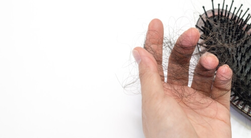 علاج تساقط الشعر بسبب الذئبة الحمراء