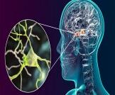 أمراض عصبية نادرة