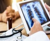 كيفية تشخيص جلطة الرئة