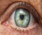 أمراض العيون النادرة