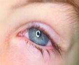 أمراض العين الفيروسية