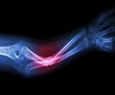 مراحل التئام العظام