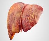 أنواع تشمع الكبد