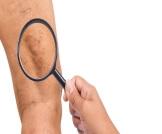 أسباب ظهور الشعيرات الدموية في الفخذ