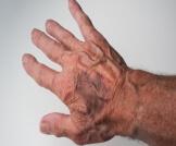 انفجار الشعيرات الدموية تحت الجلد