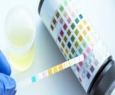رموز تحليل البول للحامل