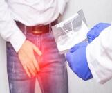 أعراض التهاب البربخ