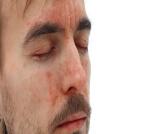 ما هو علاج الأكزيما في الوجه