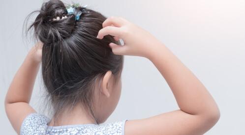 علاج حكة الرأس عند الأطفال