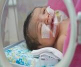 مشاكل الرئة عند حديثي الولادة